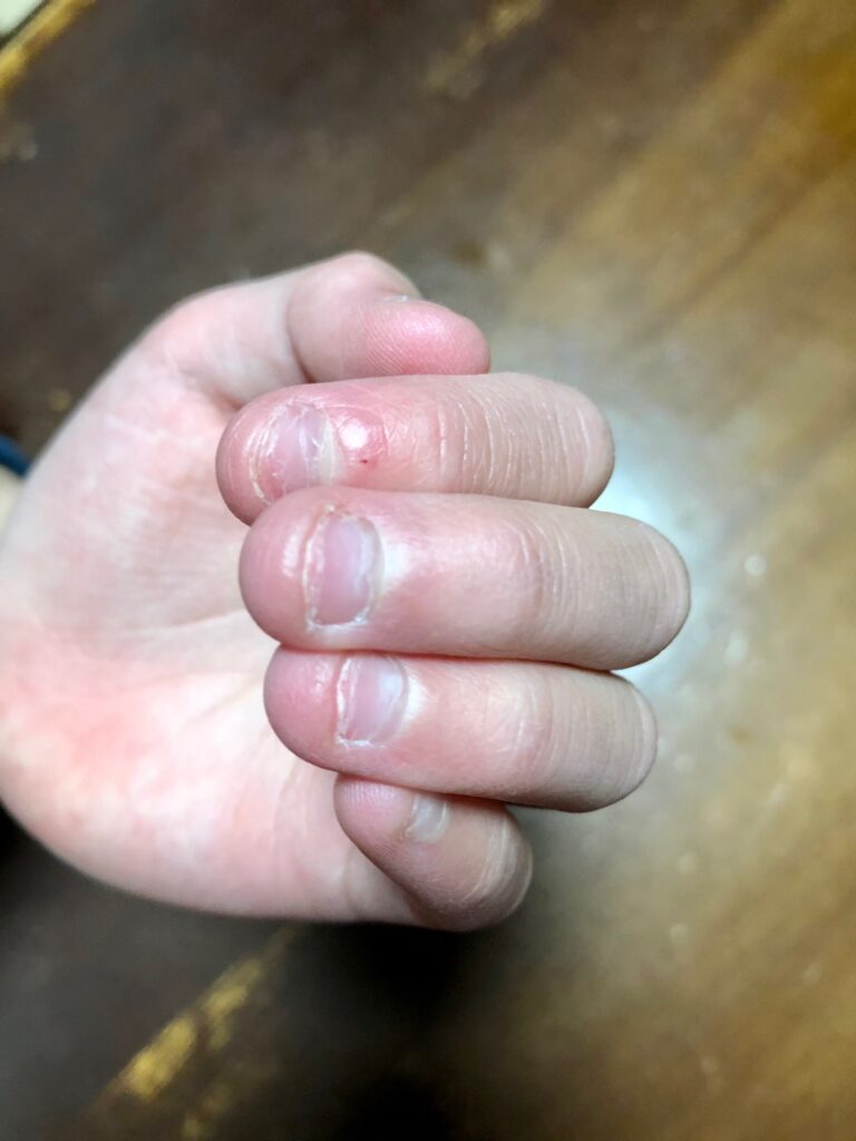 爪を噛む癖のある次女の指